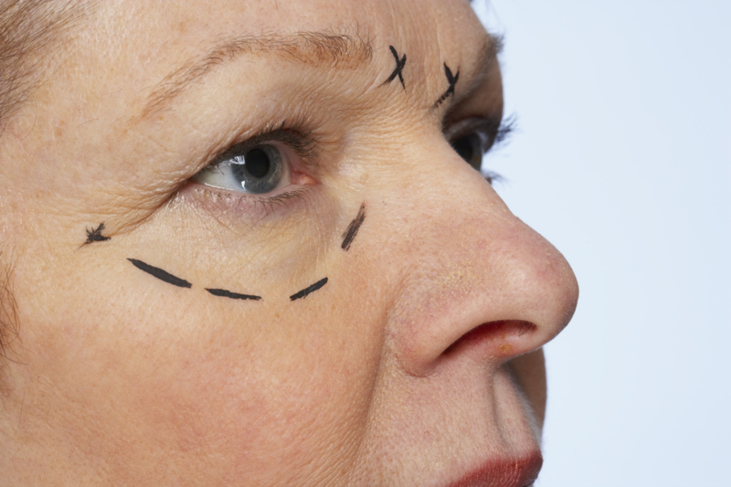 non surgical face lift What Is A Non Surgical Face Lift?